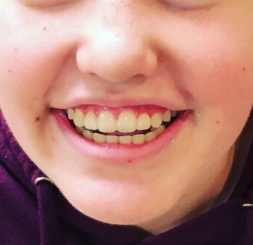 Braces Off Kate Cropped